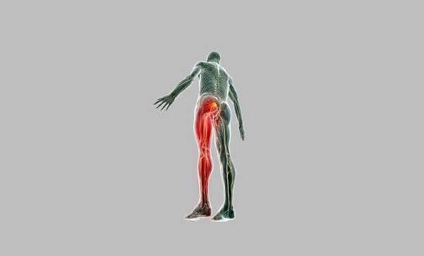 Lombosciatica: recuperează-te corect pentru a nu ajunge la hernie de disc!