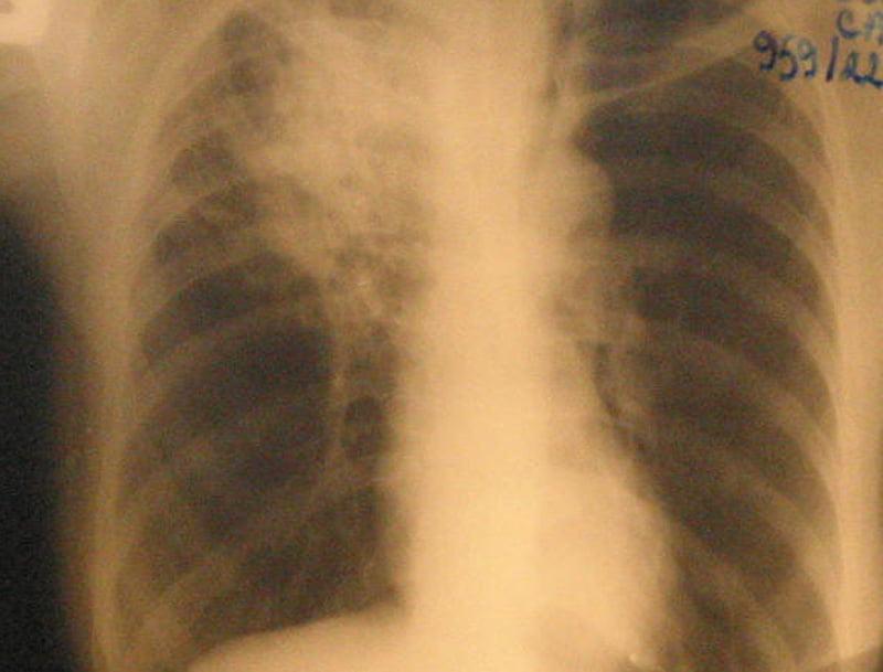 Laborator mobil pentru depistarea TBC în comunele din zona Roman